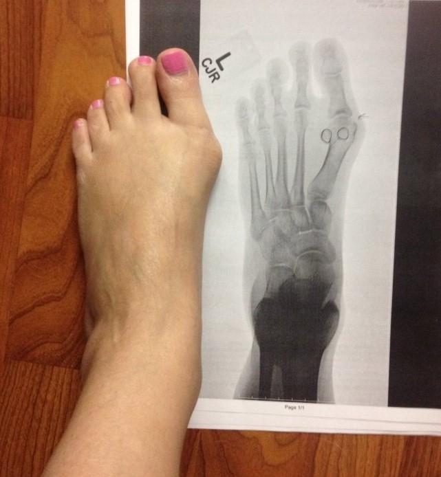 footbone